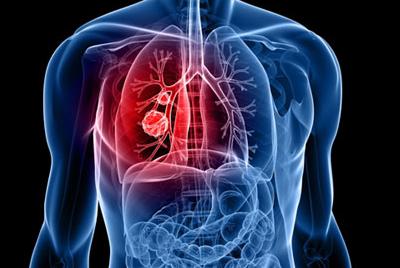 Cardio thoracic surgeon in pune