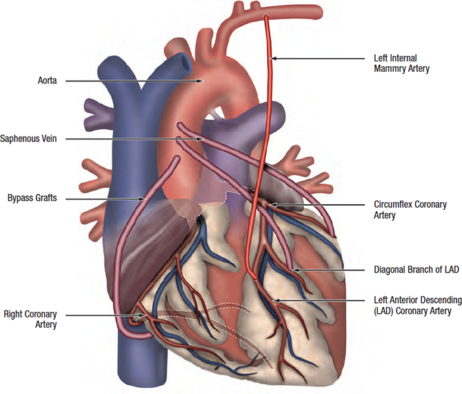 Treating Heart Surgery In Pune
